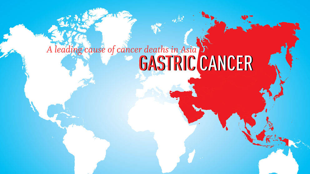 Gastric cancer article - Cancer pulmonar en ninos