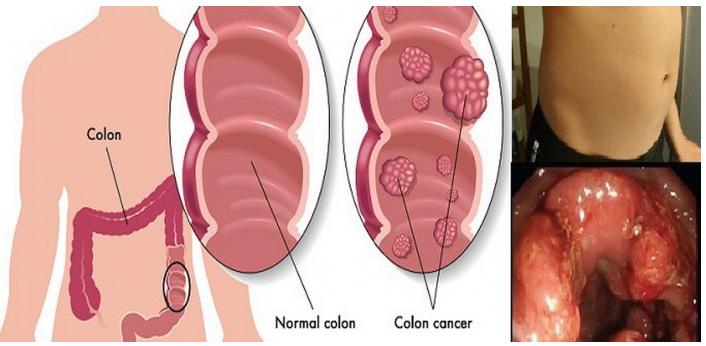 detoxifierea colonului cu sucuri condyloma acuminata artinya