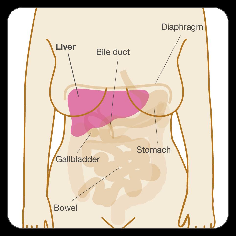 oxiuri in zona genitala papilloma malignant