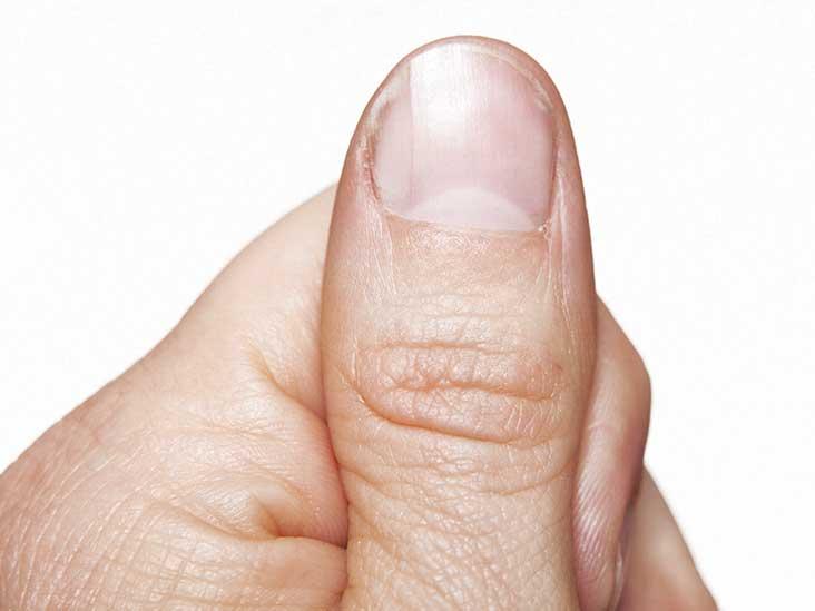 Hpv fingernails