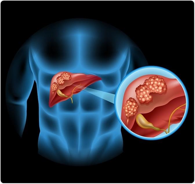 simptome oxiuri adulti ce pastile sunt ieftine pentru viermi