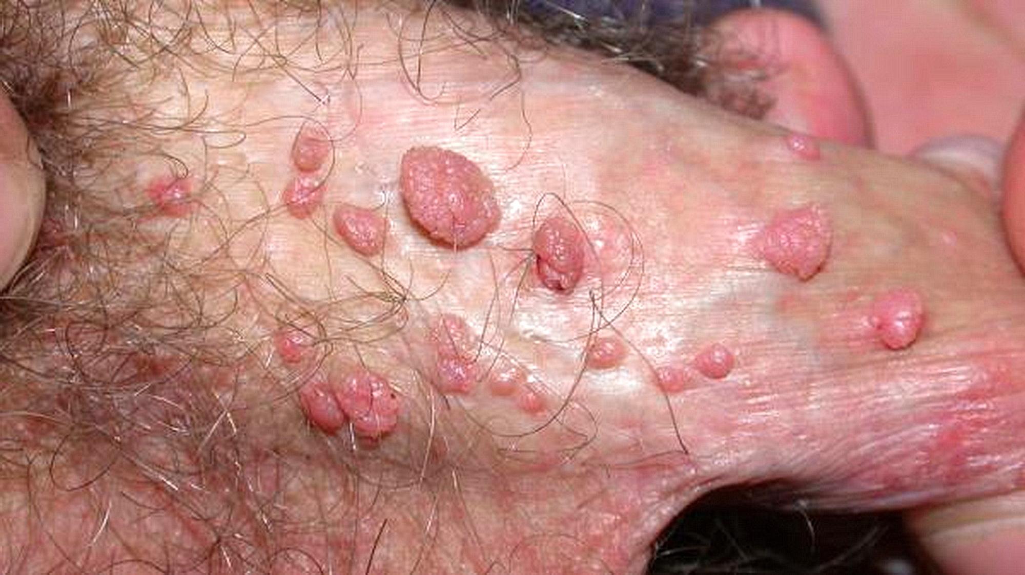 Papilloma virus uomo cura.