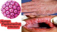 human papillomaviruses cause hpv penile cancer rates