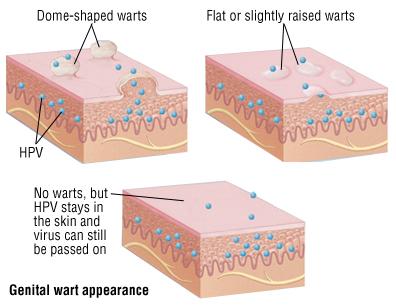 hpv warts description)