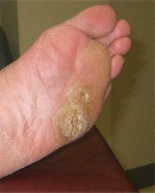 hpv causes foot warts