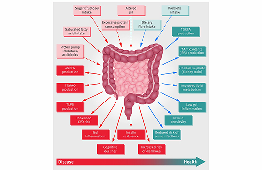 dysbiosis symptoms nhs)