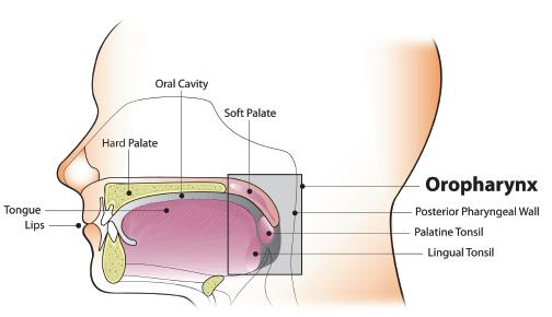hpv positive oropharyngeal cancer symptoms
