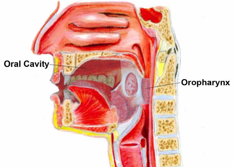 human papillomavirus- related oropharyngeal cancer)