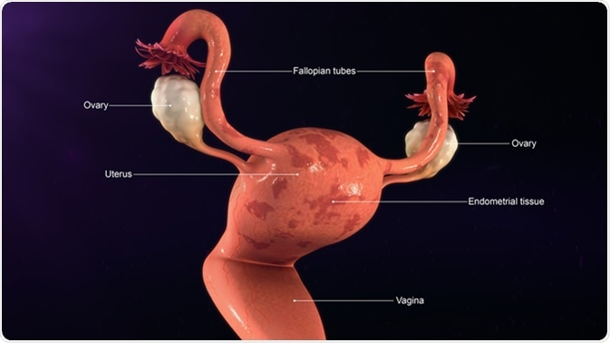 cancer endometrial maligno
