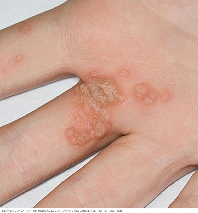 warts on both hands icd 10