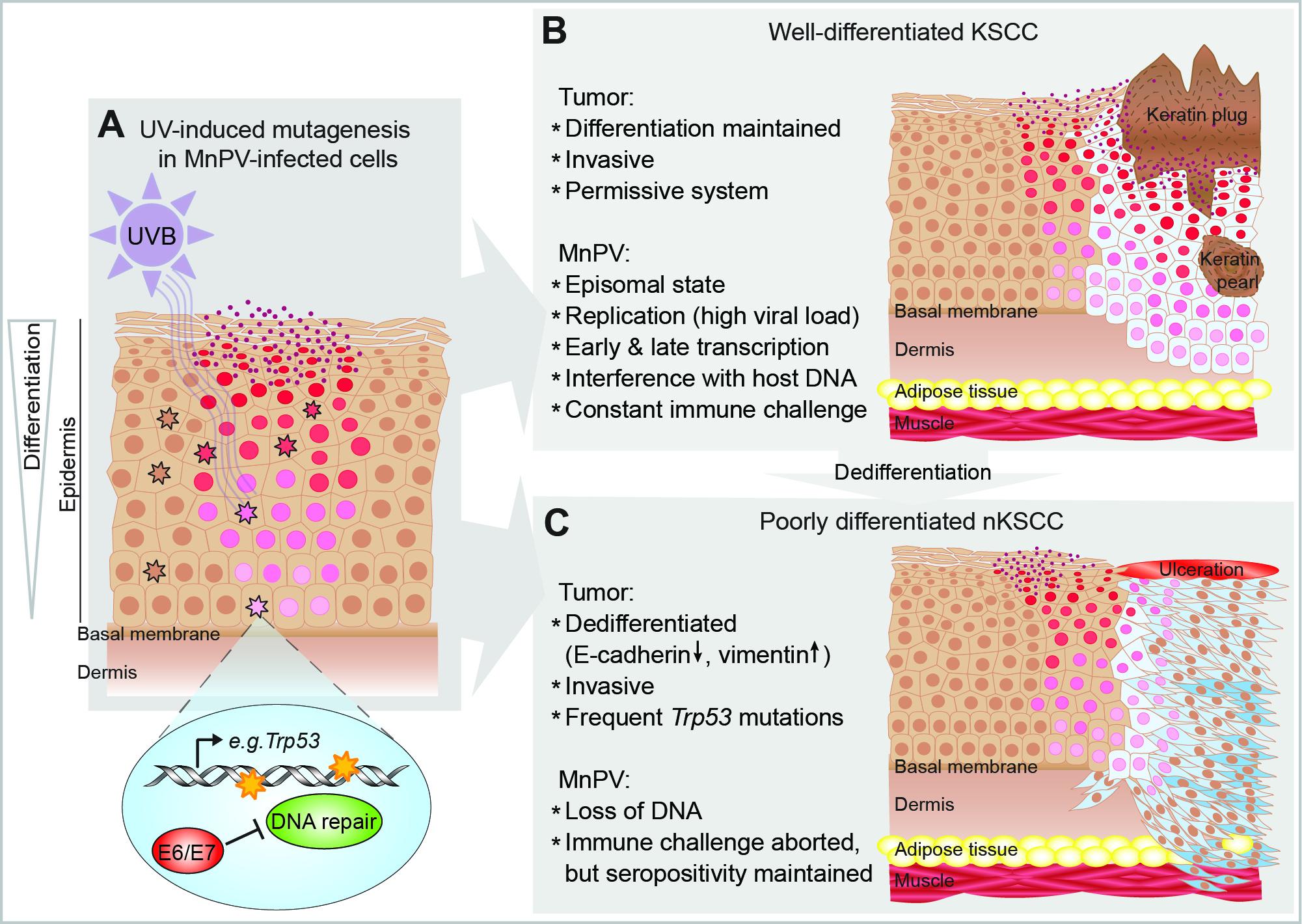 papilloma development tumor)