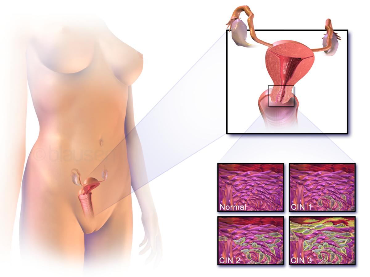 the human papillomavirus can cause o tabletă cu gustul cărnii de viermi