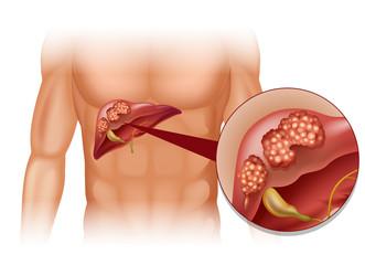 cancerul hepatic cauze