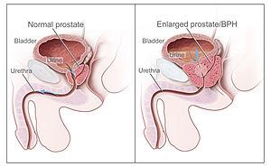 cancer de uretra la femei)