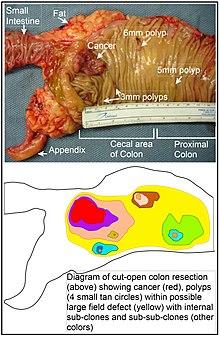 rectosigmoid cancer symptoms)