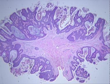 fibroepithelial papilloma skin