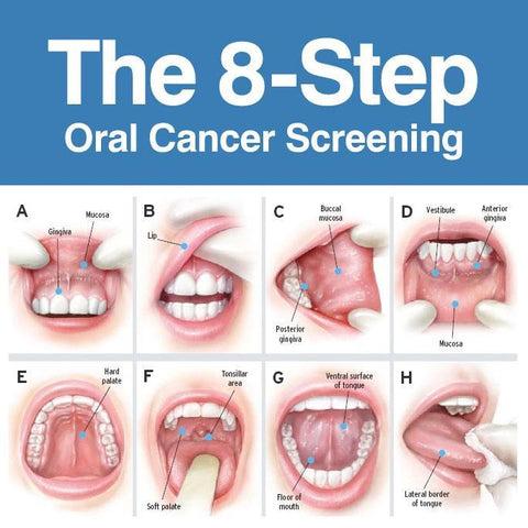 symptoms of throat papilloma