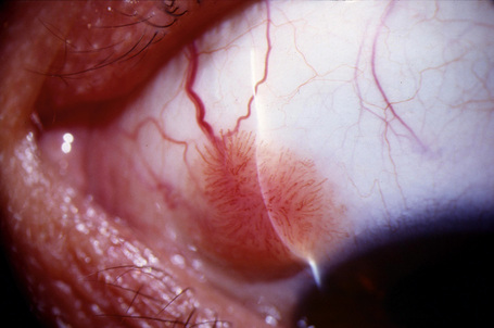 conjunctival papilloma removal)