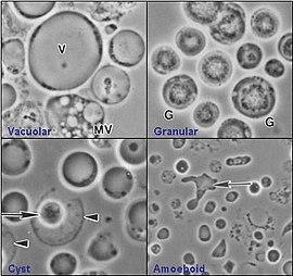 parazit blastocystis hominis