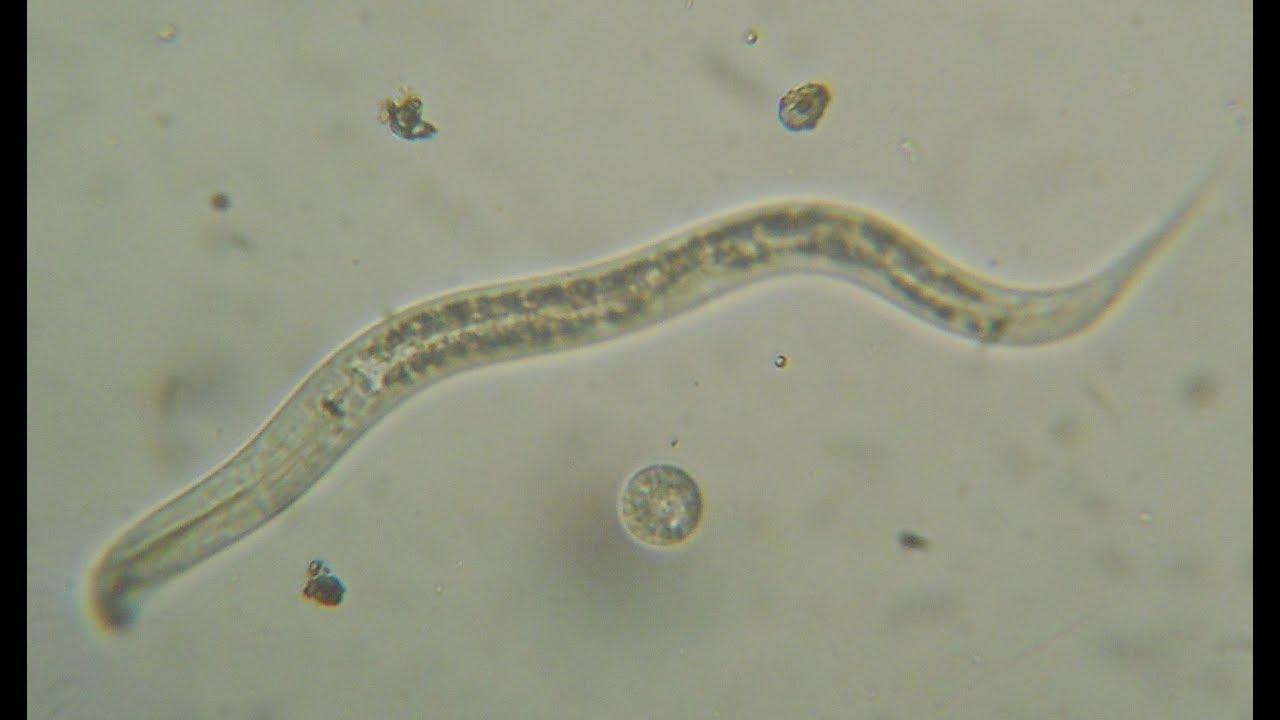 paraziți în proba de urină)