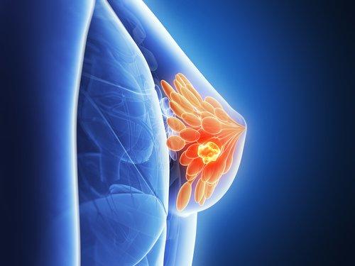 Sarcoma cancer canada. Ghid de management al sarcoamelor de ţesuturi moi