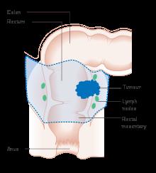 rectosigmoid cancer symptoms