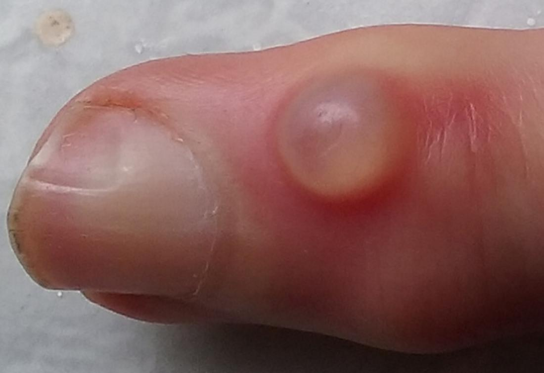 wart on foot has turned black papillomatosis and mri
