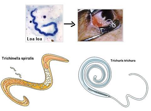 filum nemathelminthes adalah