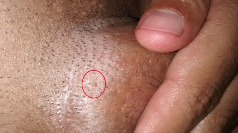 hpv male genital warts)