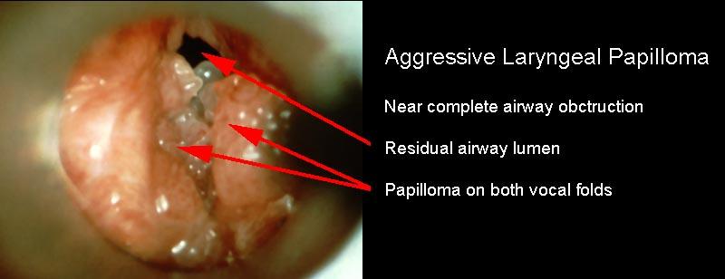 juvenile laryngeal papilloma)