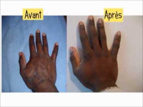 dermatite capilar