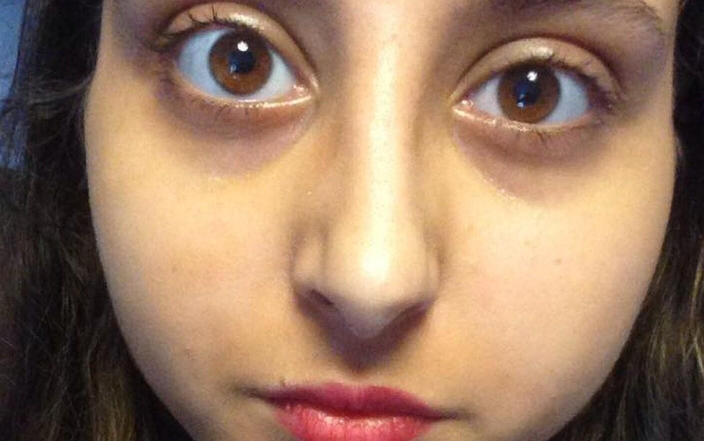 medicamente parazite pentru ochi
