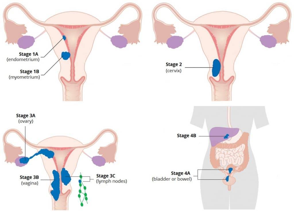 ovarian cancer ka ilaj