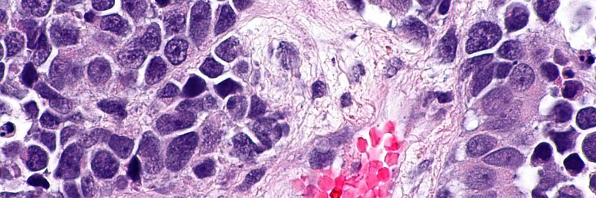 cancer vezica urinara prognostic)