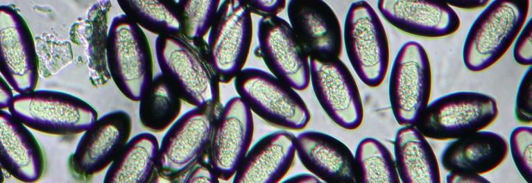 Parasitos oxiuros sintomas. Microbiología Basica - PDF Free Download