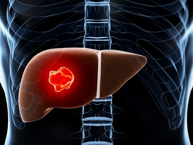 [The epidemiological aspects of the relationship between viral hepatitis and primary liver cancer].