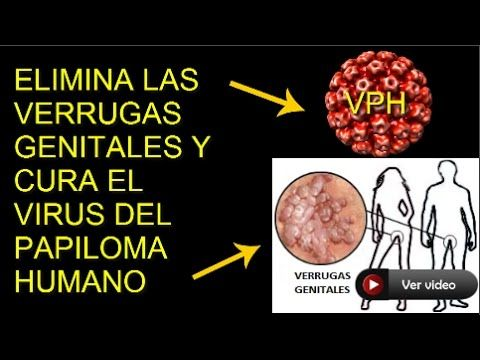 virus del papiloma que hacer