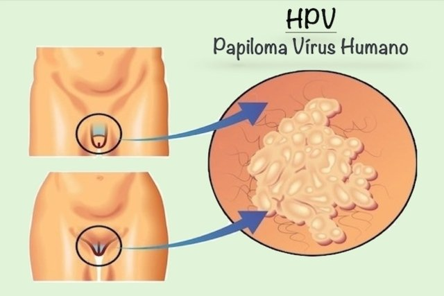 que significa ser hpv)
