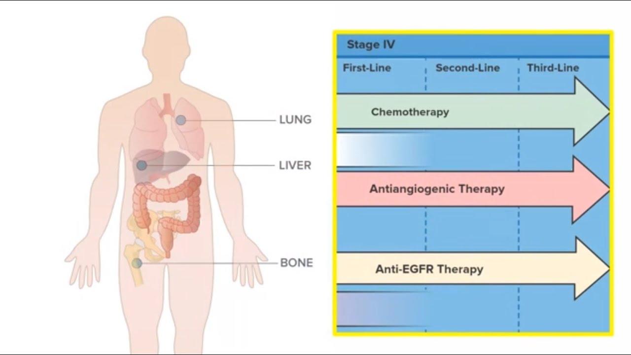 cancer metastatic colorectal