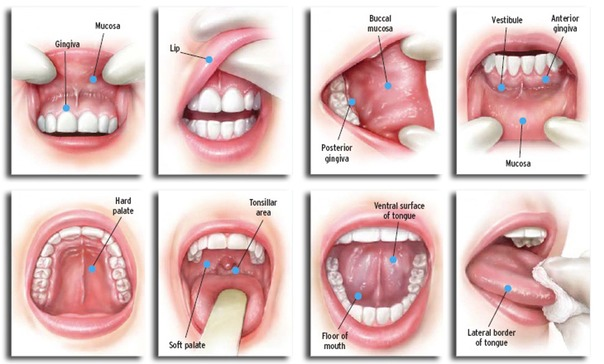 hpv oropharyngeal cancer symptoms