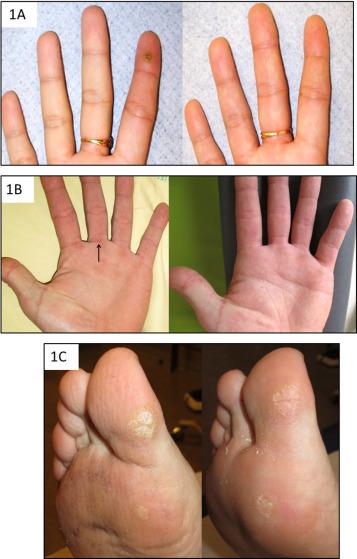 papillomavirus et traitement