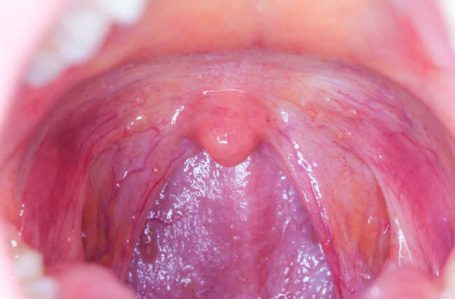 hpv related esophageal cancer)