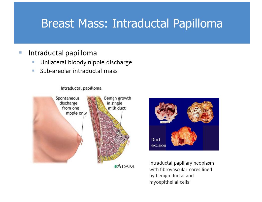 intraductal papilloma caused by hpv