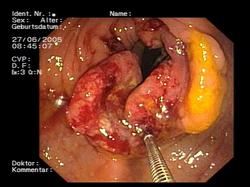 cancer de colon porque da)