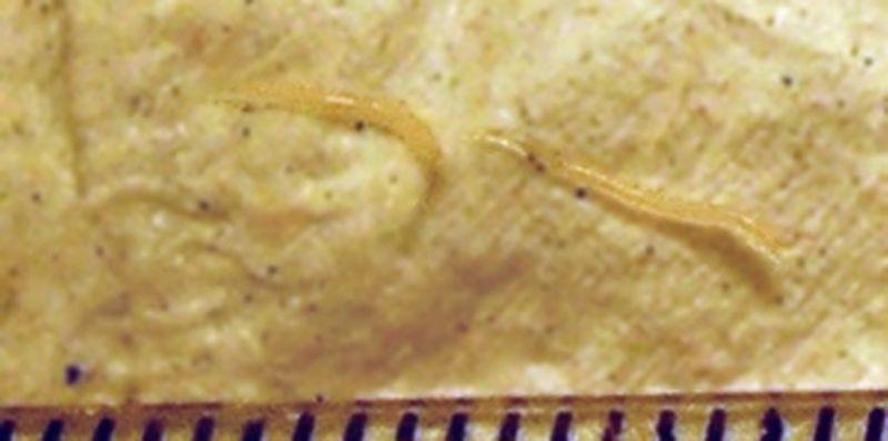Paraziti la gene, Paraziți pe piele! Parazitul genelor. Mulți nici nu știu că îl au! Simptome