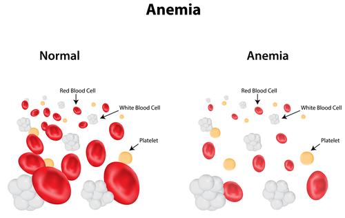 Anemia scaderea hemoglobinei
