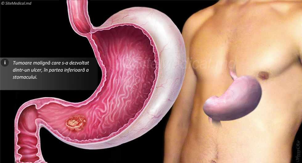 Cancer gastric ultima faza