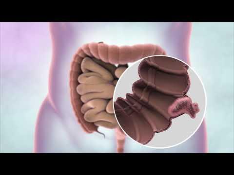 Denumirea medicamentelor pentru tratamentul viermilor, Enterobius vermicularis symptomen