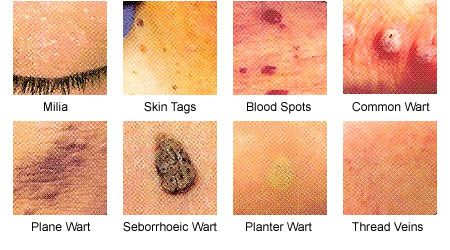hpv on skin treatment