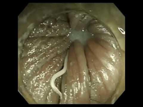 viermi pinworm cum să aducă